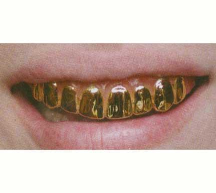 Gold Hollywood Teeth-0